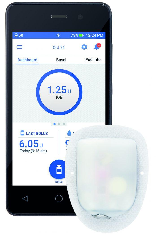 משאבת אינסולין omnipod - הדרך הבטוחה לניהול הסוכרת